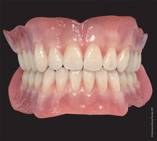 Les proth ses saint priest 69800 dentiste drs bernard - Cabinet dentaire saint priest ...